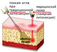 Лазерная липосакция в вопросах и ответах